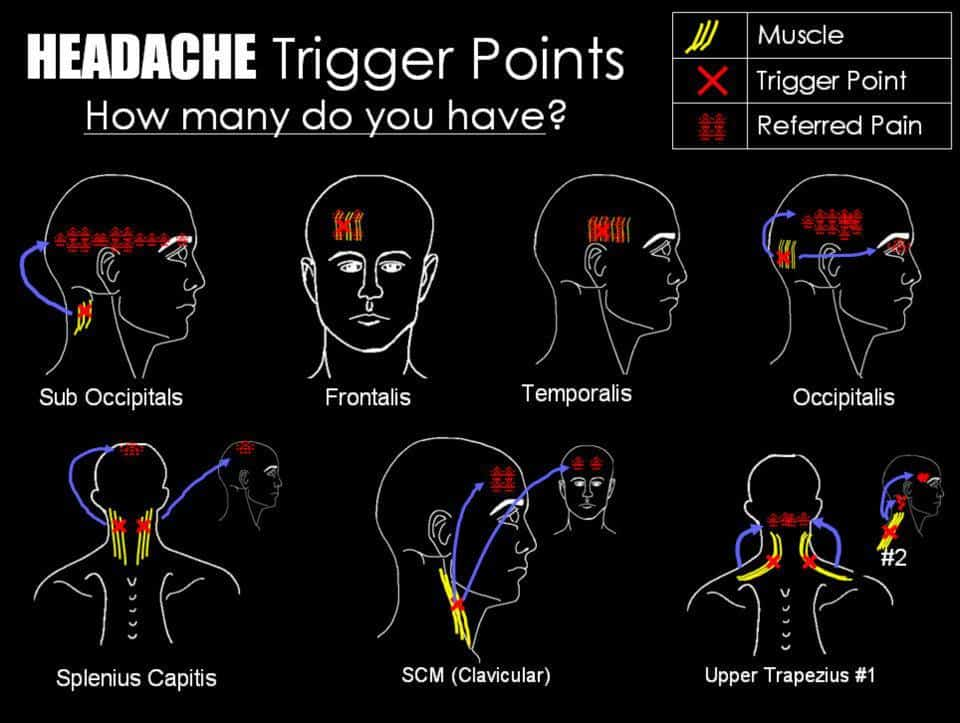 Massage therapy can help release trigger points that cause headaches