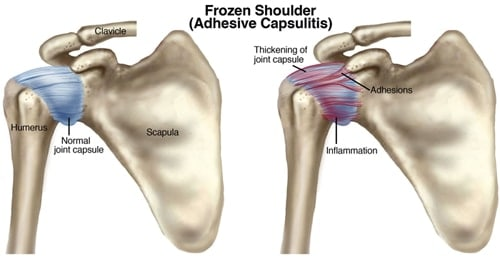 frozen shoulder steroid injection technique